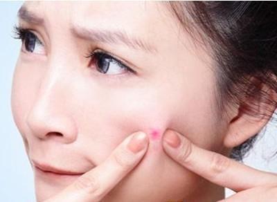 化妆品代加工教你几个快速祛痘的好方法,特别是第6个方法效果很好!