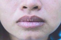 嘴唇发黑,再好的口红也不管用,4个坏习惯加速嘴唇色素沉着!